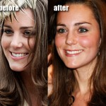 Kate Middleton: The Before and After She Got Her Ex-Boyfriend Back