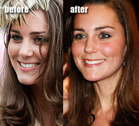 Kate Middleton Method How To Get Your Ex Boyfriend Prince
